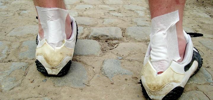 Bežecké zranenie – zápal achillovej šlachy